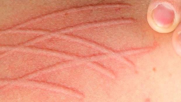 بیماری-حساسی-پوستی