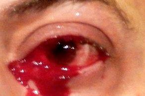 گریه خونین مرد بیچاره در بیمارستان!+ عکس
