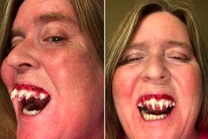 فرو رفتن وحشتناک دندان زامبی در دهان این زن!+ عکس