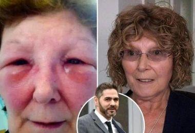 فاجعهای که دکتر قلابی روی صورت این زن به بار آورد + عکس