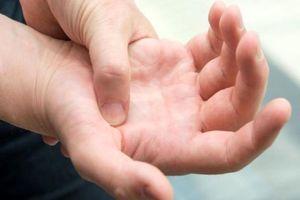 دستها کلسترول بالای خون را نشان میدهند