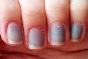 آبی شدن رنگ ناخنها نشانه چیست؟