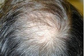 راهکارهای درمان ریزش موی ناشی از کرونا