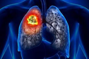 مهمترین علت سرطان ریه را بشناسید