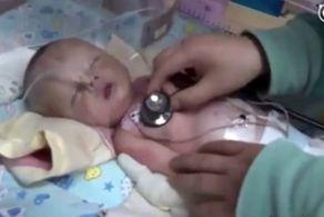 سگ ولگرد نوزاد زنده به گور شده را پیدا کرد+عکس