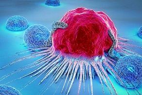 ریفلاکس معده موجب ابتلا به این سرطان میشود
